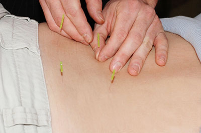 Medical acupuncture treatment